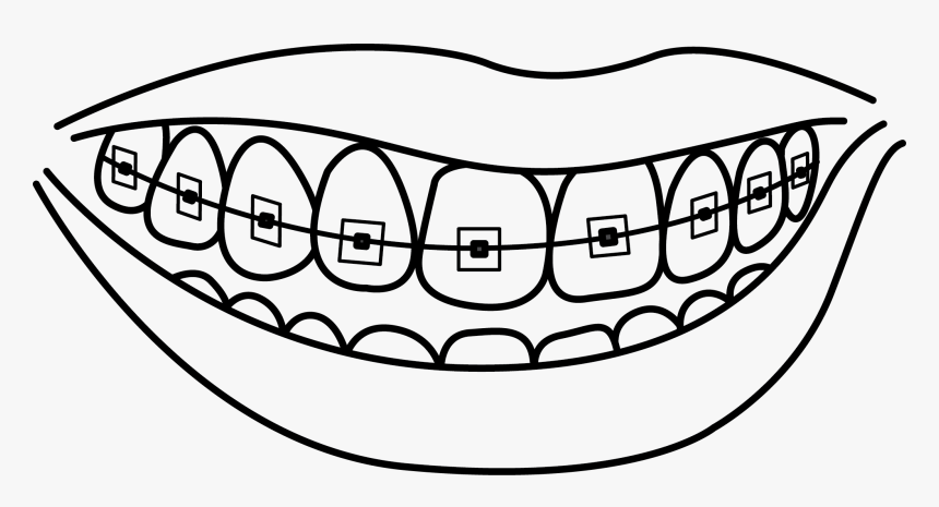 Collection Of With - Teeth With Braces Coloring Pages, HD ...