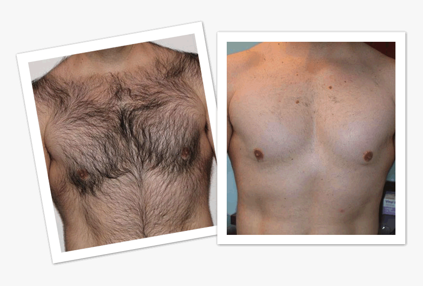 Mens Laser Hair Removal Before And After Hd Png Download