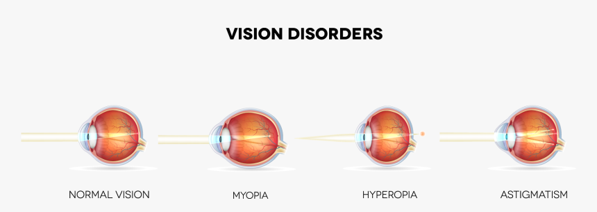 What Eye Conditions Does Lasik Treat Banner Personal Health Issues And Concerns Vision Hd Png Download Transparent Png Image Pngitem